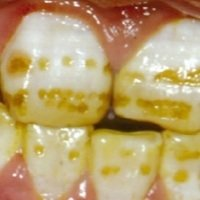 Water Fluoridation causes Dental Fluorosis